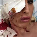 Trans Woman Was Attacked Near Haifa